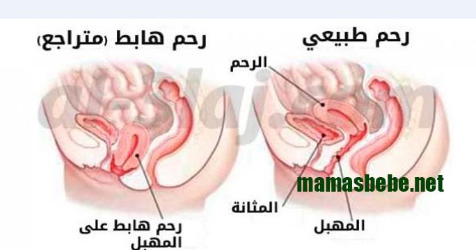 الرحم المقلوب