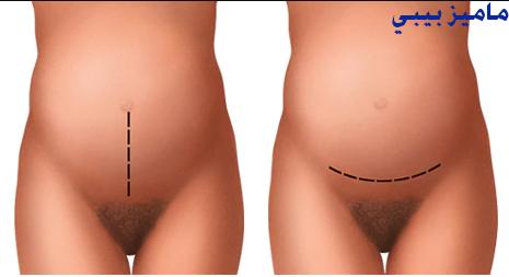 الشقوق البطنية المستخدمة خلال إجراء عمليات الولادة القيصرية