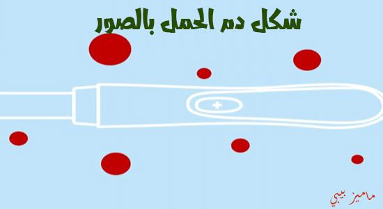 صورة شكل دم الحمل بالصور