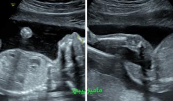 الفرق بين الجنين الذكر والجنين الانثى