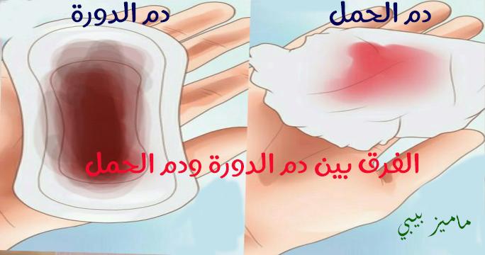 صورة الفرق بين دم الدورة ودم الحمل