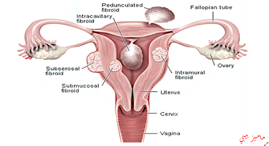 صورة الاورام الليفية اعراضها واسبابها وعلاجها بالتفصيل