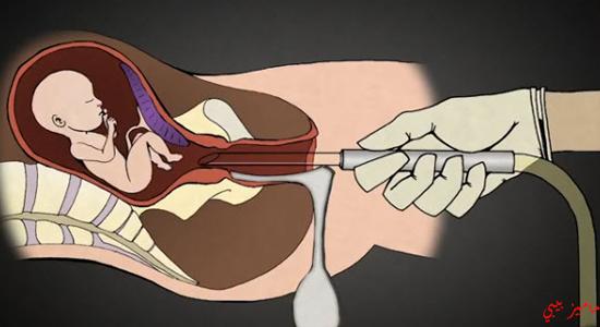 صورة حقنة الاجهاض السريع