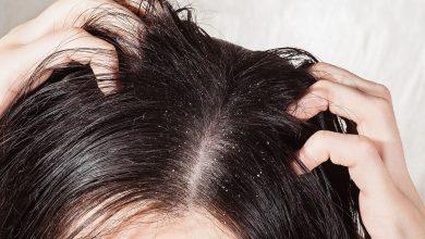 صورة أهم طرق علاج الشعر الخفيف والمتساقط