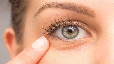 صورة نصائح لحماية منطقة تحت العين